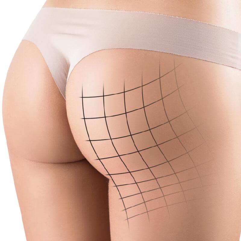 butt-lift-of-a-women